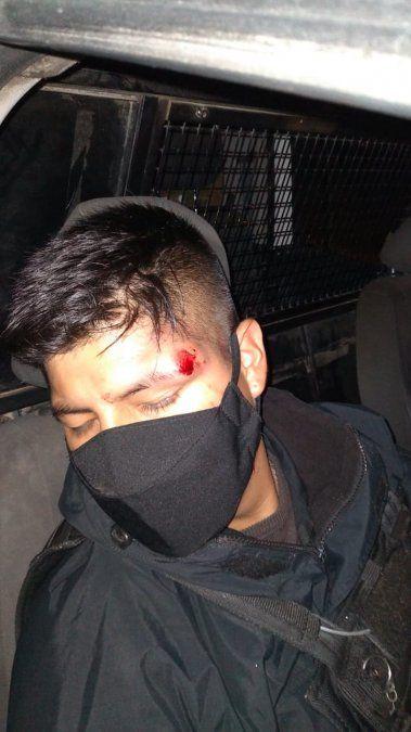 Policías atacados y lesionados en operativo de prevención en Campo Verde